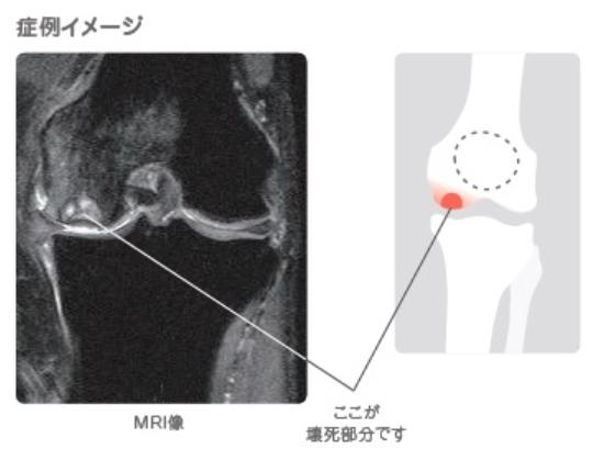 大腿骨内顆骨壊死症例イメージ