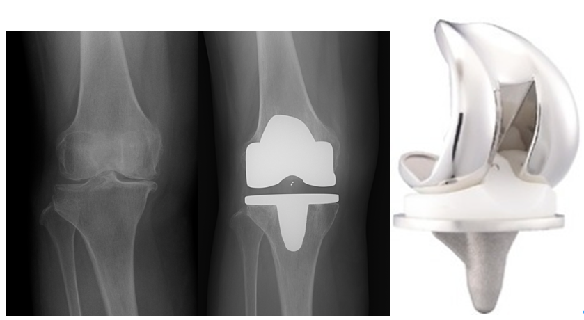 人工膝関節置換術説明画像