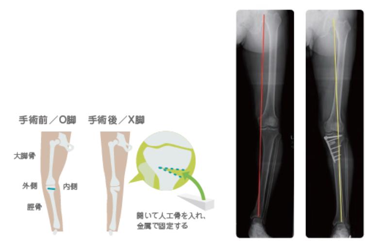 高位脛骨骨切り術説明画像